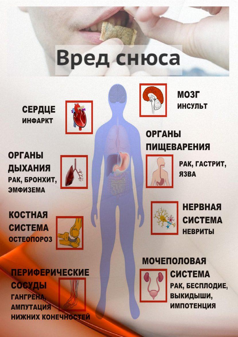 СНЮС-памятка - 0004
